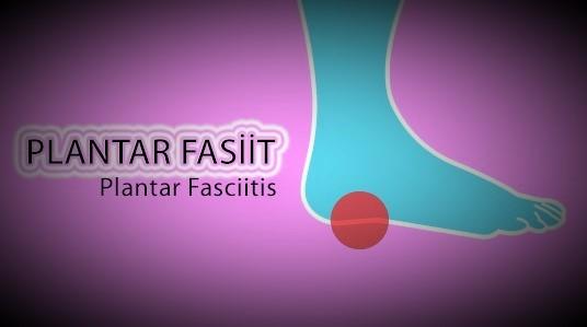 RunningInjuries_06PlantarFasciitis